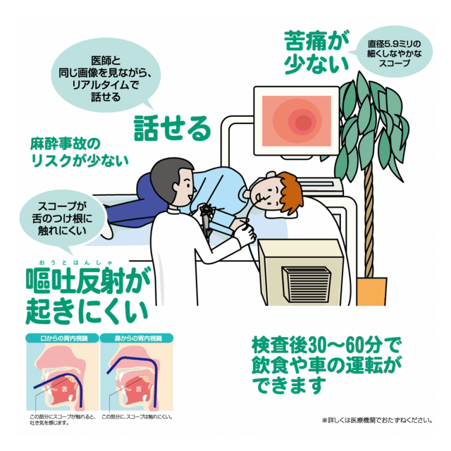 経鼻内視鏡の特徴