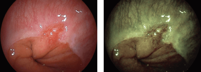 噴門部(胃の入り口)の腫瘍の例